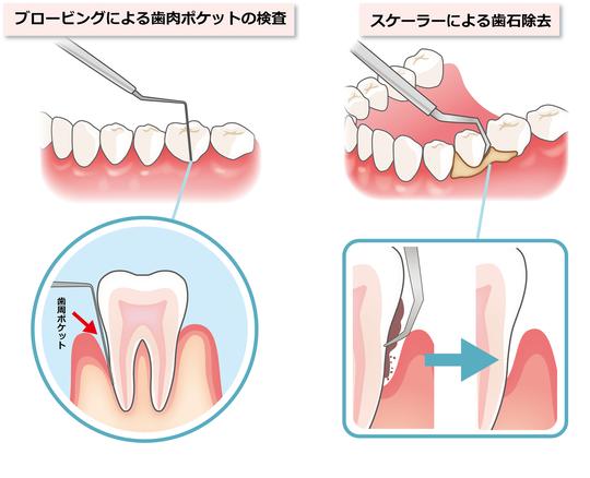 漏 歯槽 治療 膿 歯槽膿漏の痛み、腫れ、口臭、治療に効果的な11の薬